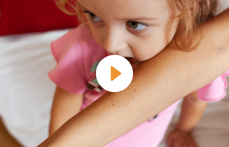 https://childcareanswers.org/wp-content/uploads/2021/07/Biting-Featured-Video.png